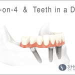 All on 4.teeth in a day, Alexander shor dental, Seattle prosthodontics