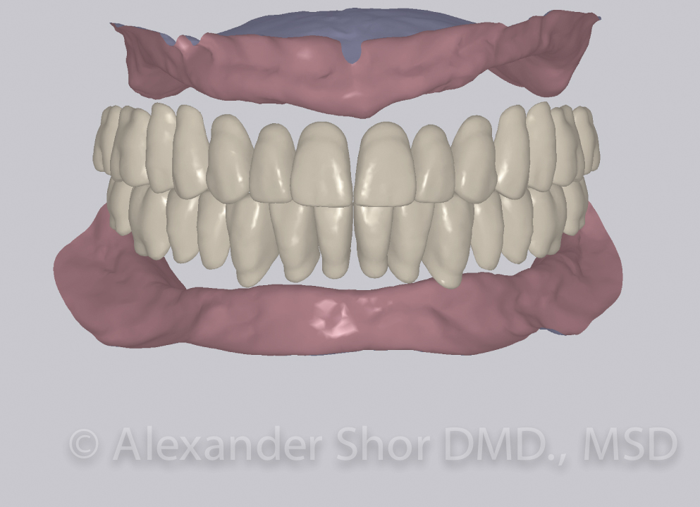 Prosthodontics Before & After