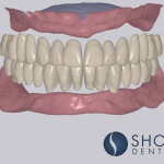 learn about digital denture fabrication