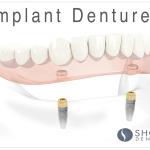 Implant dentures Alexander Shor, Shor dental, Specialist in Prosthodontics