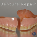 Denture Repair Alexander Shor Dental Seattle Prosthodontist