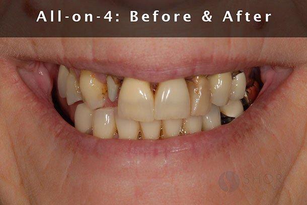 Seattle Prosthodontics