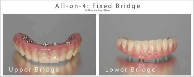 All on 4 dental implants fixed bridge design