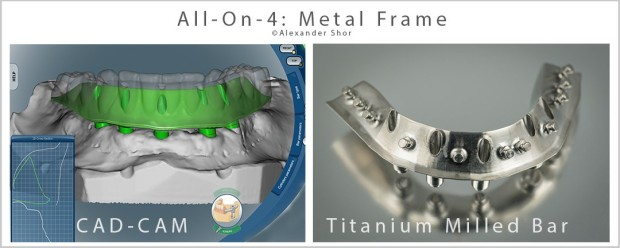 All-on-4 Metal Frame Alexander Shor Dental CAD CAM 1