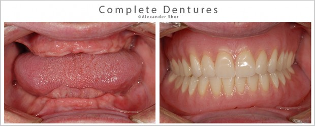 Complete Dentures Seattle