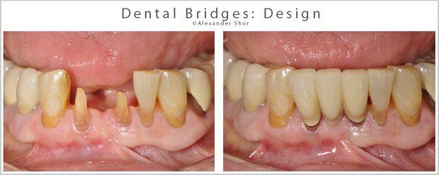 Dental Bridges Design