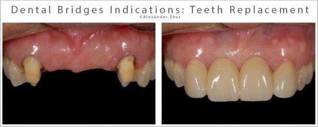 Dental Bridges Indications
