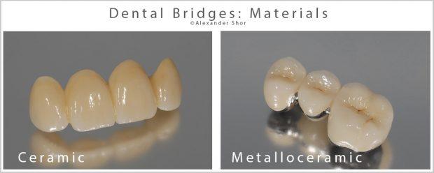 Dental Bridges Materials