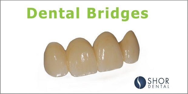 Dental Bridges Seattle Shor Dental
