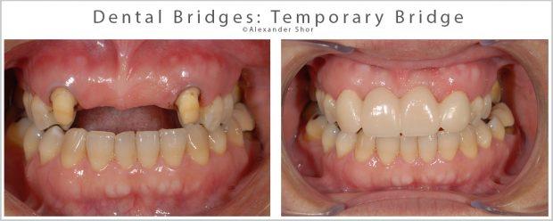 Dental Bridges Temporary
