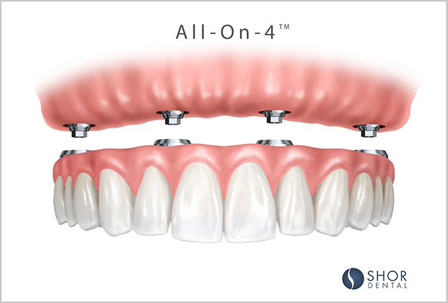 Dental-Implants-Seattle-All-on-4