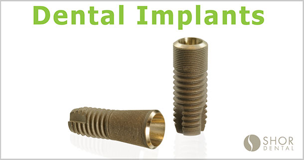 Dental Implants Seattle