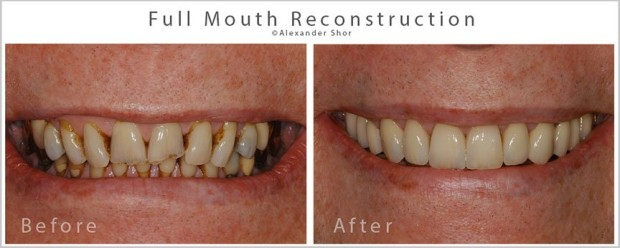 Seattle Full Mouth Reconstruction