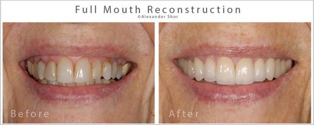 Seattle Prosthodontist Shor