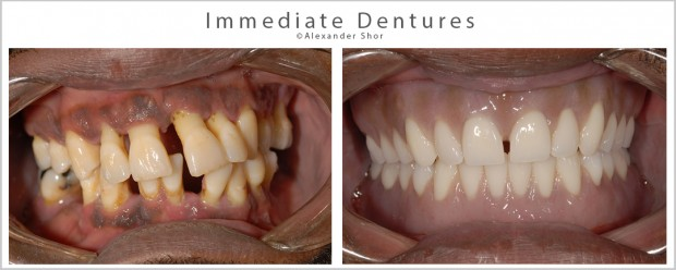 Immediate Dentures Seattle