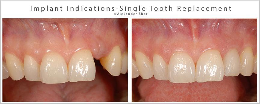 Dental Implants Seattle