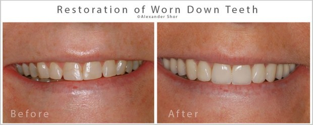 Seattle Treatment of Tooth Wear