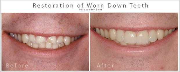 Tooth Restoration Seattle