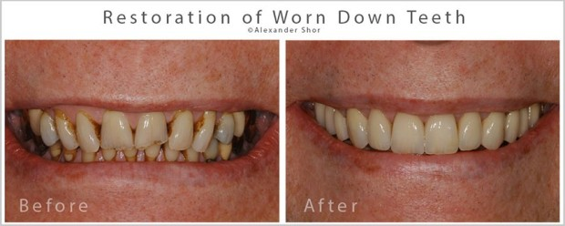 Treatment of Tooth Wear Seattle