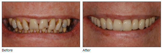 Before & After Cosmetic Dentistry Seattle