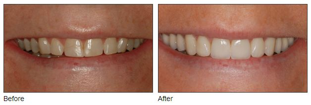 Cosmetic Dentistry Before & After Seattle