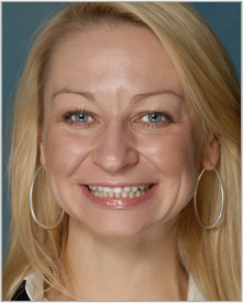 Vlada, Dental Assistant Seattle