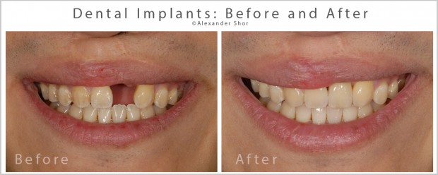 Dental Implants Before and After SEA