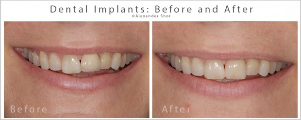 Dental Implants Before and After Dr. Shor