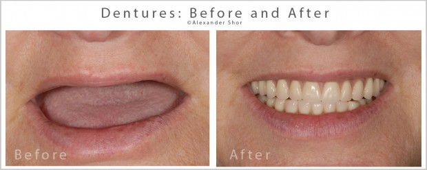 Dentures Before & After Seattle - Shor Dental