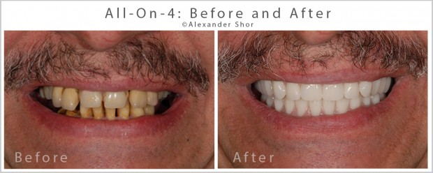 All on 4 Dental Implants Before and After Seattle