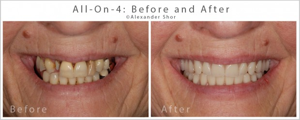 All on 4 Dental Implants Before and After Shor Dental