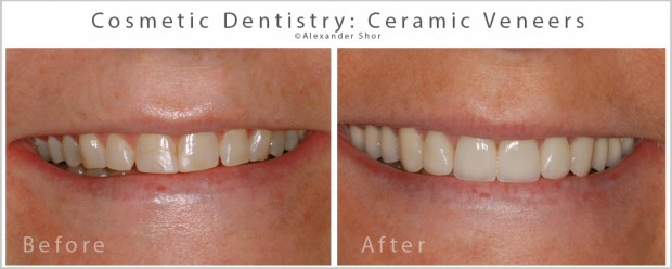 Ceramic Veneers Seattle