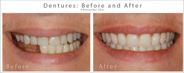 Dentures Before & After Dr. Shor