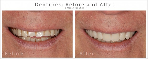 Dentures Before & After Shor Dental Seattle