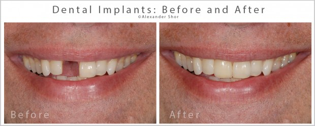 Dental Implants Seattle Before & After