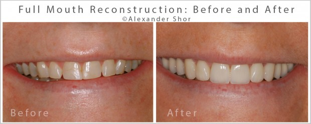 Before & After Full Mouth Reconstruction Seattle