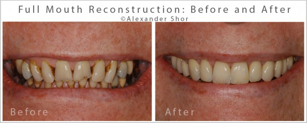 Full Mouth Reconstruction Dr. Shor Seattle