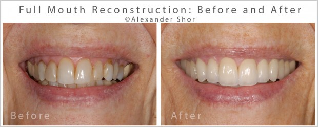Full Mouth Reconstruction 3 Alexander Shor Dental