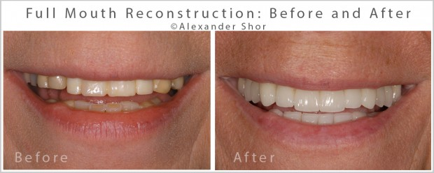 Full Mouth Reconstruction Before & After Seattle