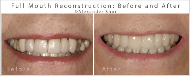 Full Mouth Reconstruction Alexander Shor