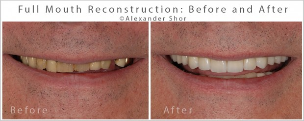 Full Mouth Reconstruction Shor Dental