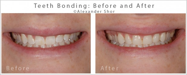 Teeth Bonding Before and After Alexander Shor Dental