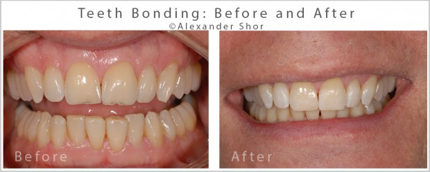 Seattle Teeth Bonding Before & After