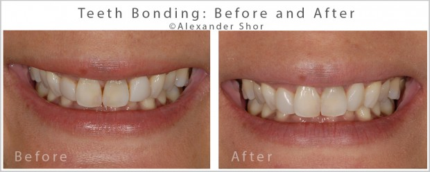 Teeth Bonding Before & After Seattle