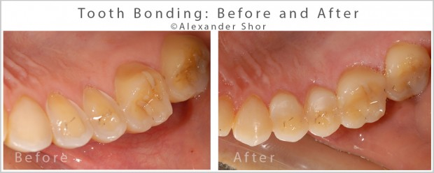 Teeth Bonding Before and After 8 Alexander Shor copy