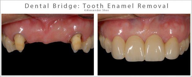 Dental bridge requires removal of tooth enamel