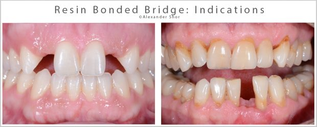 Indications for Resin Bonded Bridge