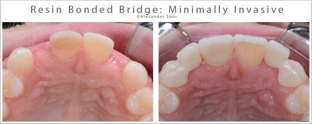 Minimally Invasive Resin Bonded Bridge